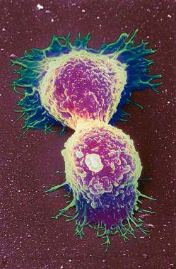 Invasivo. Células de câncer de mama: ataque duplo de coquetel de remédios fez tumores sumirem rapidamente (Latinstock / Science Photo Library)